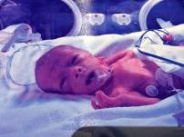 Callum Hoy born at 29 weeks