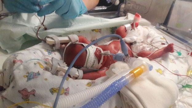 My NICU Warrior | The Smallest Things